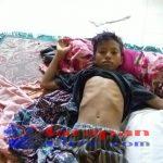 Foto Laode Nurdin Remaja Mengidap Penyakit Kelaian Pada Jantung