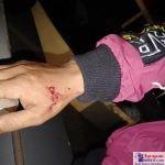 Tangan Korban yang terluka dan bebera luka lainnya di sekujur tubuhnya